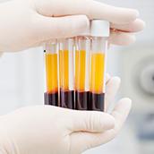 Descubras todos os tipos de tratamentos disponíveis no Instituto IGENOM